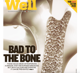 Osteoporosis for theSun-Times